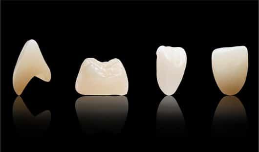 xtcera 3D zirconia restorations
